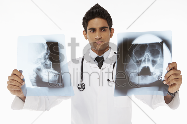 medical personnel examining x-ray films stock photo